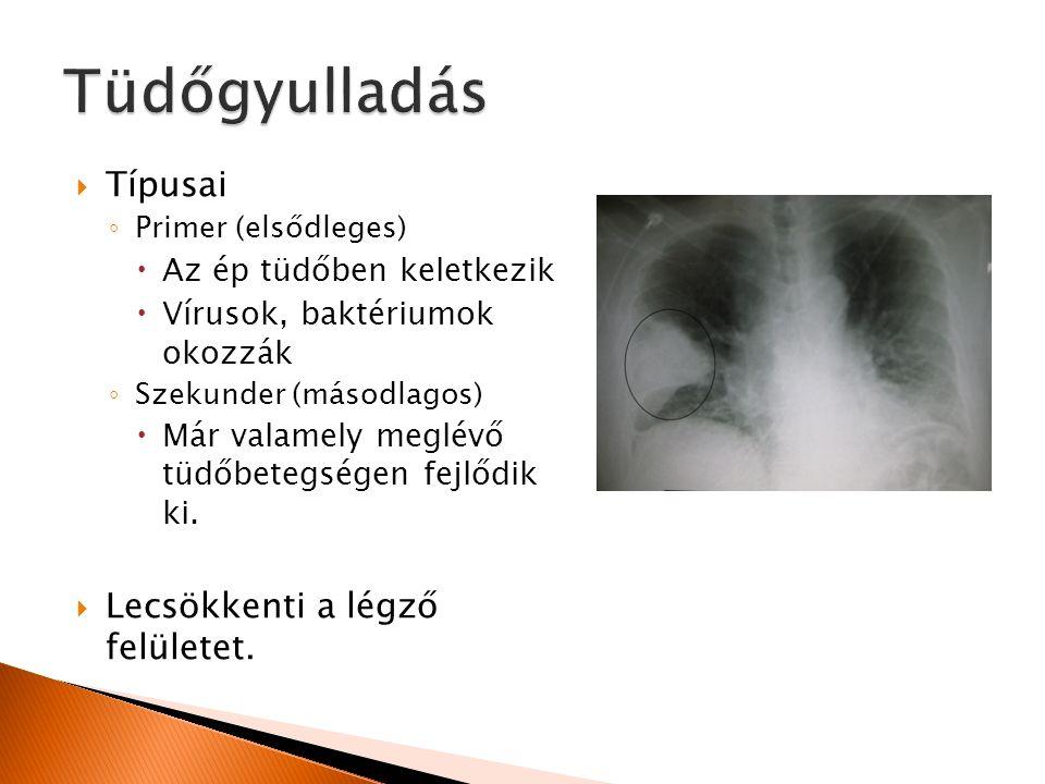 Tüdőgyulladás Típusai Lecsökkenti a légző felületet.