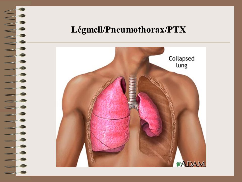 Légmell/Pneumothorax/PTX