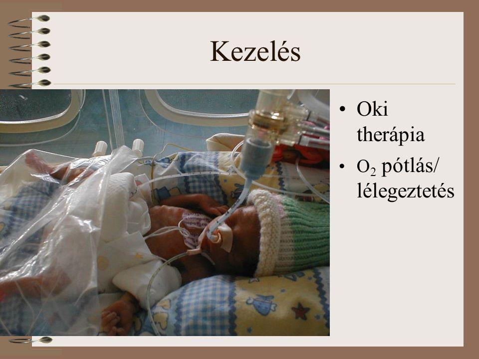 Kezelés Oki therápia O2 pótlás/ lélegeztetés