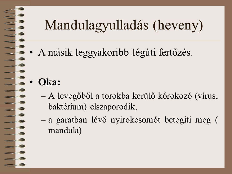 Mandulagyulladás (heveny)