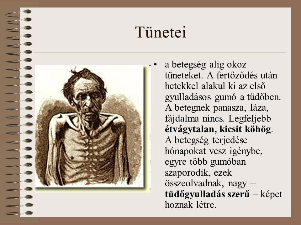 Tünetei