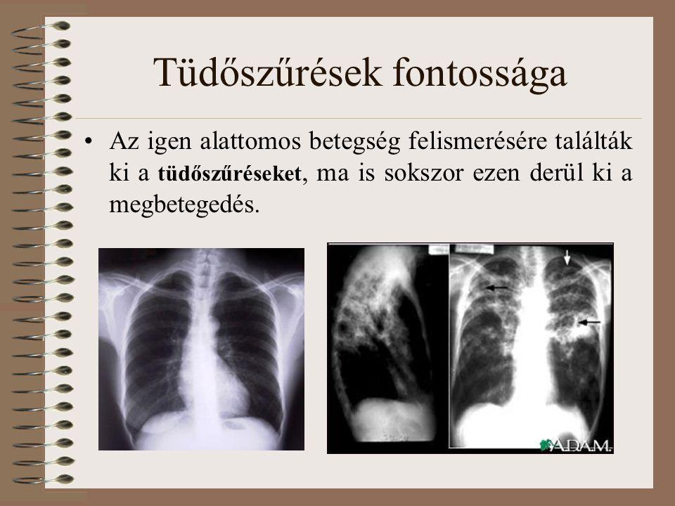 Tüdőszűrések fontossága