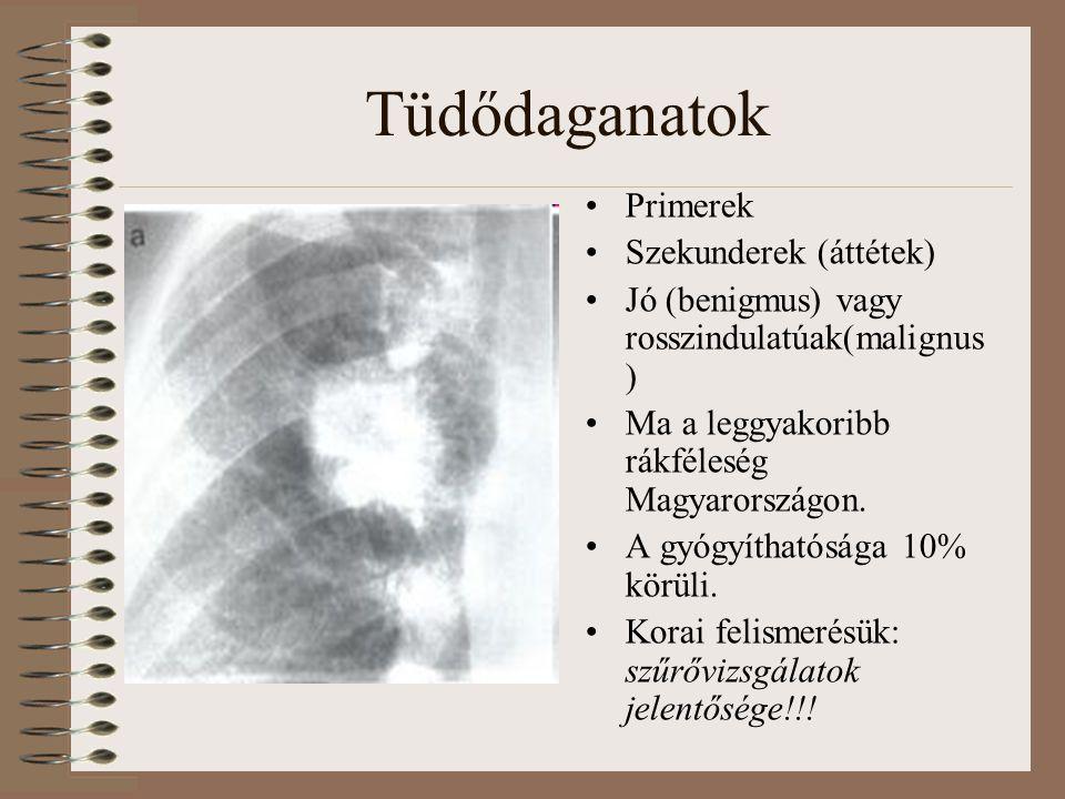 Tüdődaganatok Primerek Szekunderek (áttétek)