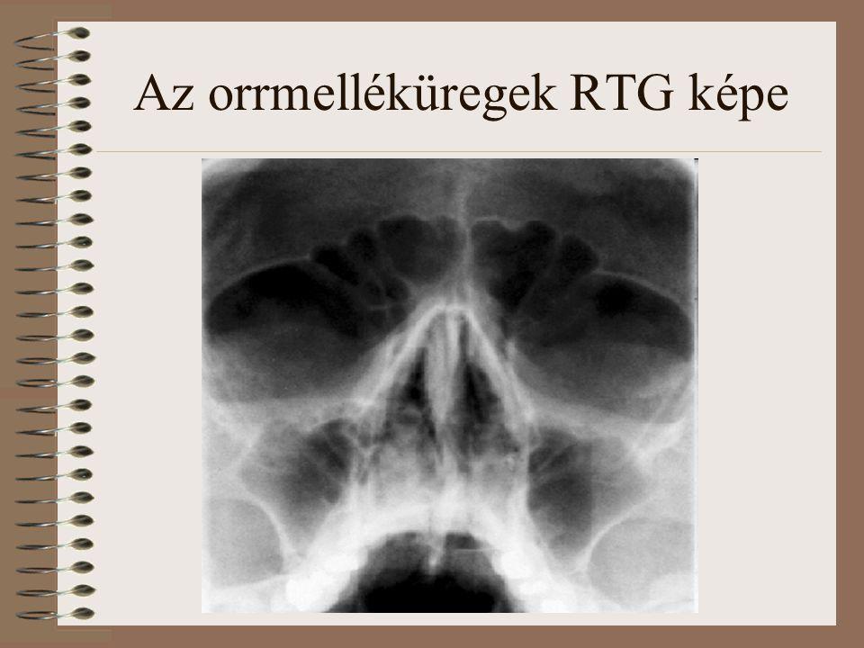 Az orrmelléküregek RTG képe