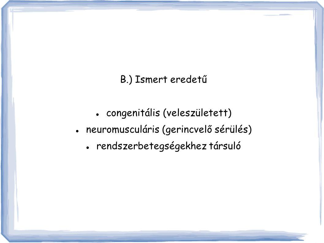 congenitális (veleszületett) neuromusculáris (gerincvelő sérülés)