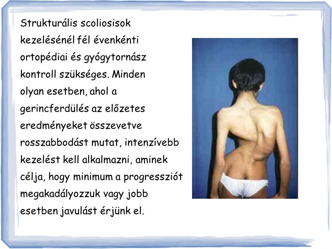 Strukturális scoliosisok