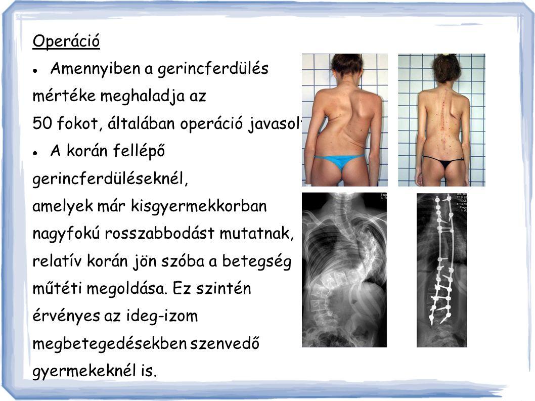 Operáció Amennyiben a gerincferdülés. mértéke meghaladja az. 50 fokot, általában operáció javasolt.