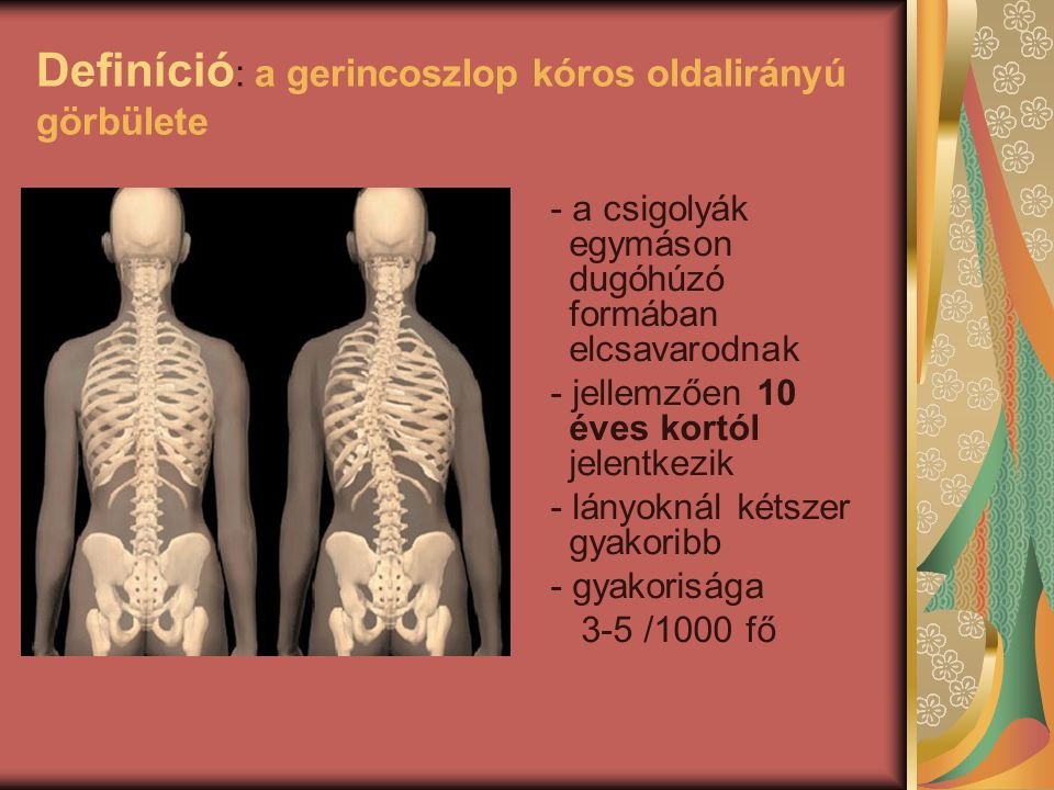Definíció: a gerincoszlop kóros oldalirányú görbülete