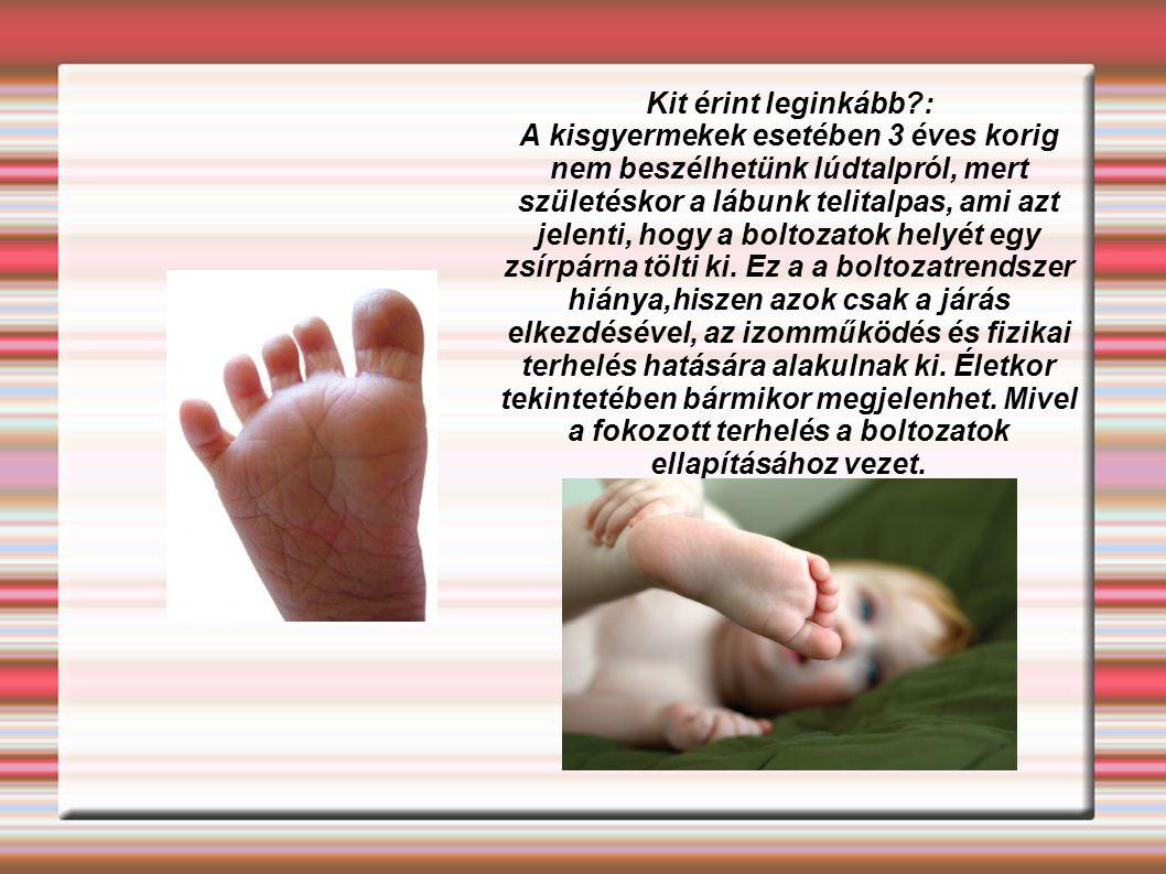 Kit érint leginkább : A kisgyermekek esetében 3 éves korig nem beszélhetünk lúdtalpról, mert születéskor a lábunk telitalpas, ami azt jelenti, hogy a boltozatok helyét egy zsírpárna tölti ki.