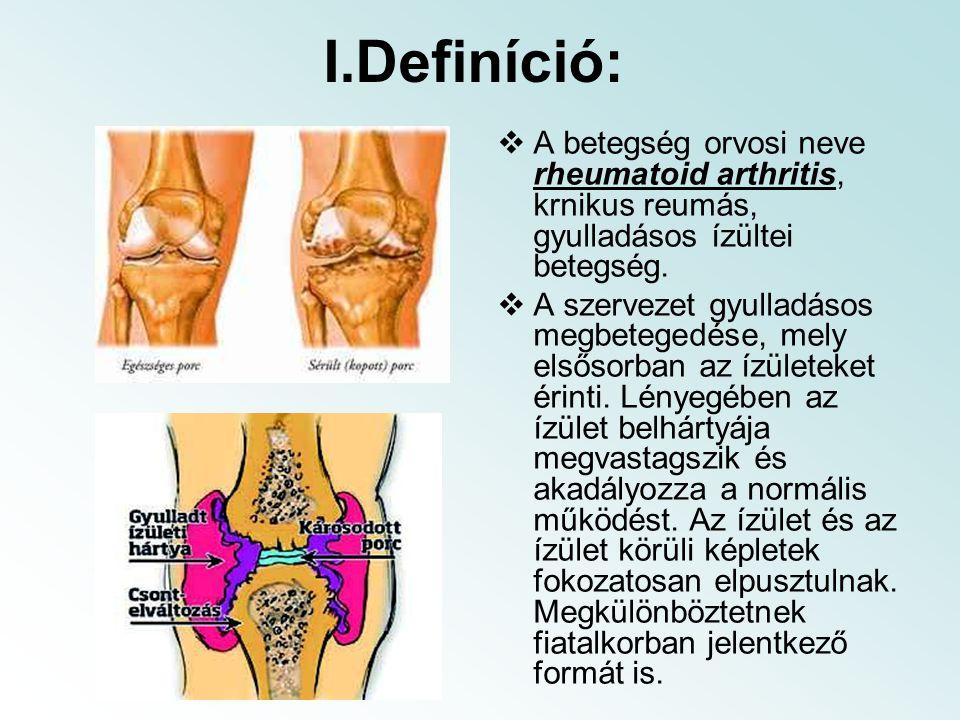 I.Definíció: A betegség orvosi neve rheumatoid arthritis, krnikus reumás, gyulladásos ízültei betegség.