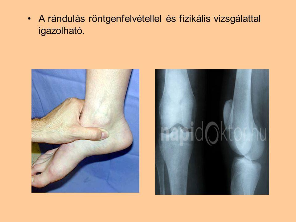 A rándulás röntgenfelvétellel és fizikális vizsgálattal igazolható.