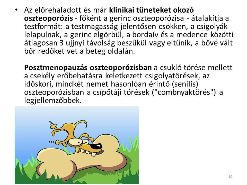 Az előrehaladott és már klinikai tüneteket okozó oszteoporózis - főként a gerinc oszteoporózisa - átalakítja a testformát: a testmagasság jelentősen csökken, a csigolyák lelapulnak, a gerinc elgörbül, a bordaív és a medence közötti átlagosan 3 ujjnyi távolság beszűkül vagy eltűnik, a bővé vált bőr redőket vet a beteg oldalán.