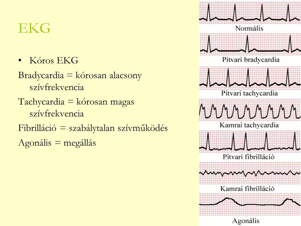 EKG Kóros EKG Bradycardia = kórosan alacsony szívfrekvencia