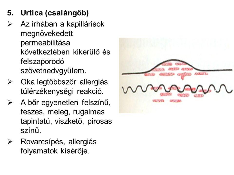 Urtica (csalángöb) Az irhában a kapillárisok megnövekedett permeabilitása következtében kikerülő és felszaporodó szövetnedvgyülem.