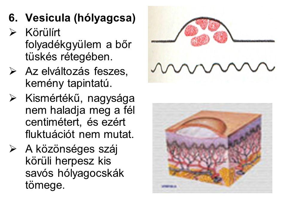 Vesicula (hólyagcsa) Körülírt folyadékgyülem a bőr tüskés rétegében. Az elváltozás feszes, kemény tapintatú.