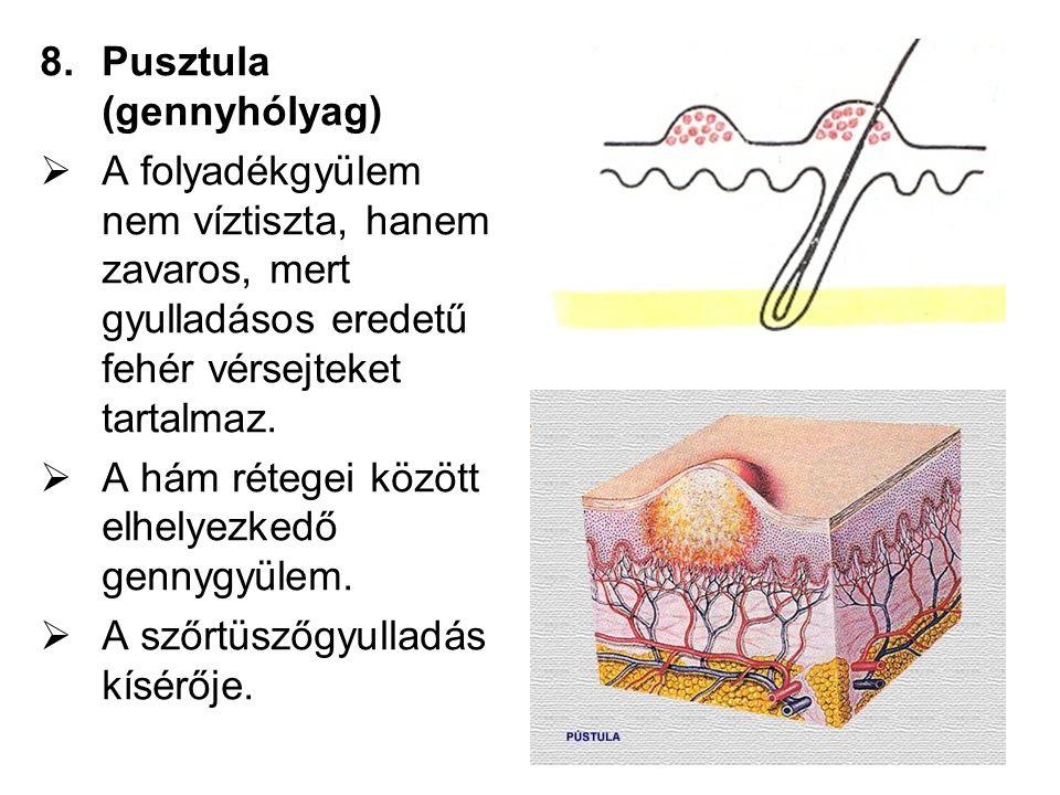 Pusztula (gennyhólyag)