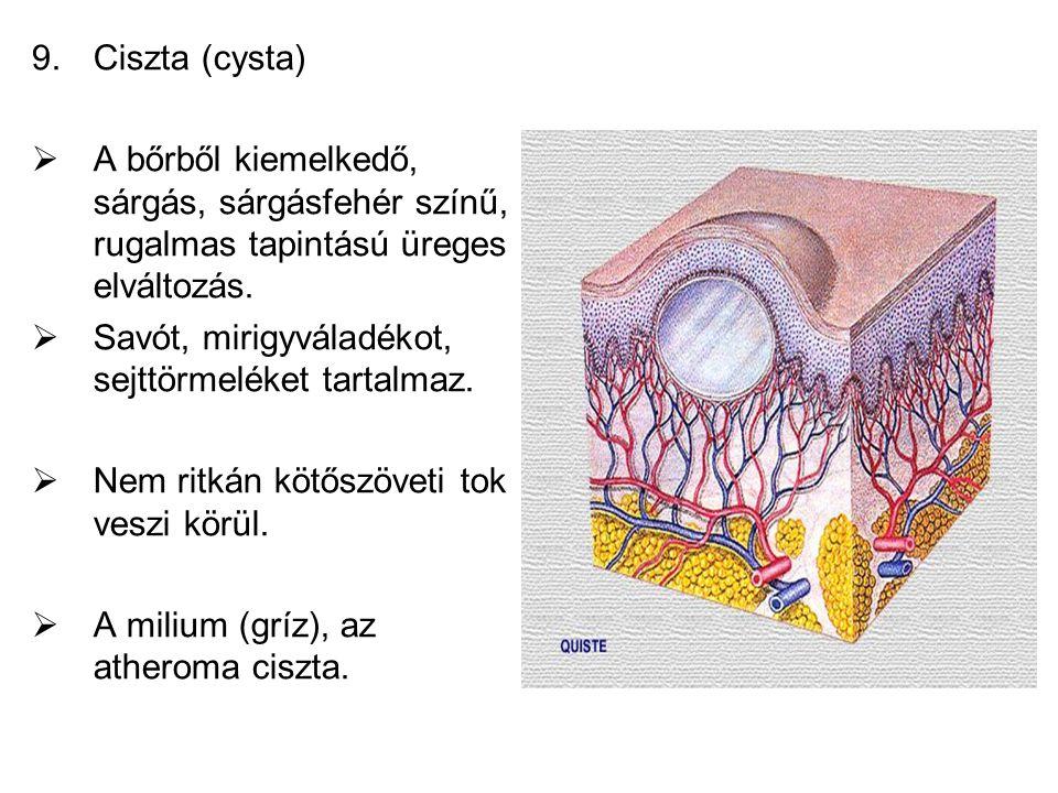 Ciszta (cysta) A bőrből kiemelkedő, sárgás, sárgásfehér színű, rugalmas tapintású üreges elváltozás.