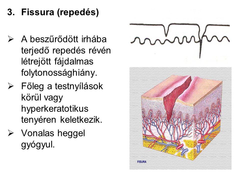 Fissura (repedés) A beszűrődött irhába terjedő repedés révén létrejött fájdalmas folytonossághiány.