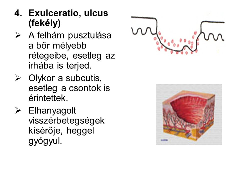 Exulceratio, ulcus (fekély)