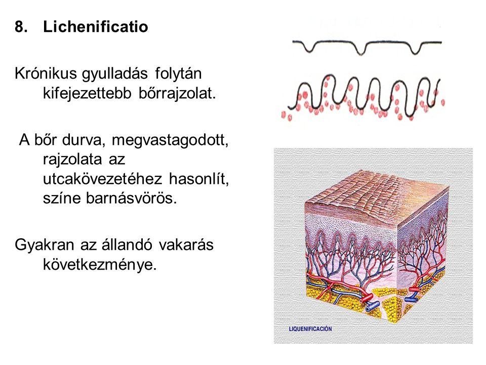 Lichenificatio Krónikus gyulladás folytán kifejezettebb bőrrajzolat.