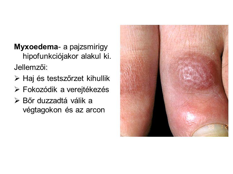 Myxoedema- a pajzsmirigy hipofunkciójakor alakul ki.