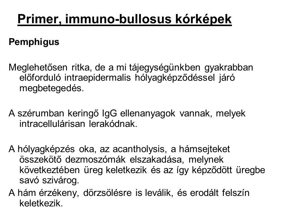 Primer, immuno-bullosus kórképek