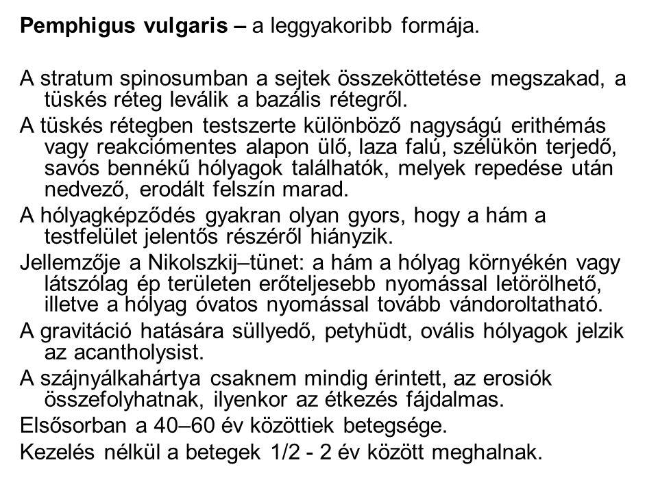 Pemphigus vulgaris – a leggyakoribb formája.