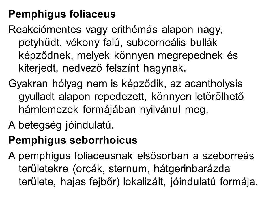 Pemphigus foliaceus