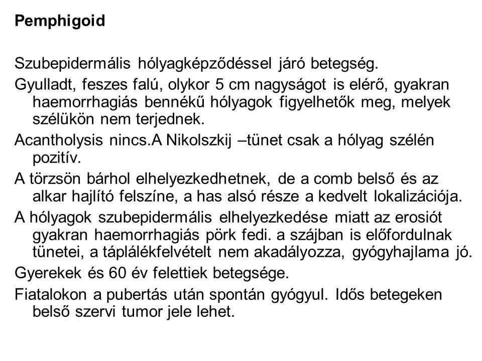 Pemphigoid Szubepidermális hólyagképződéssel járó betegség.
