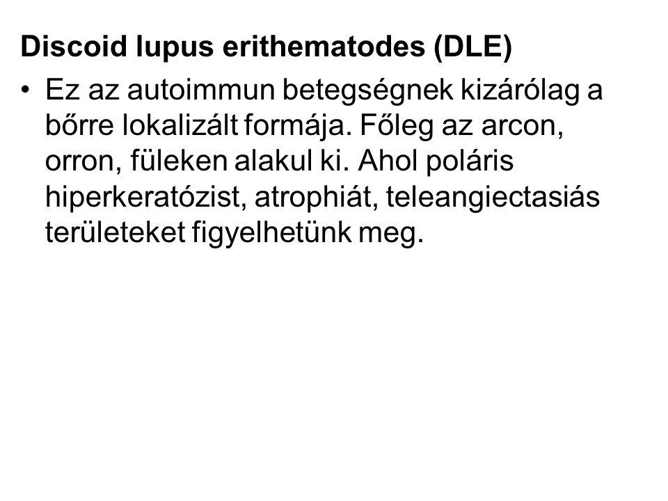 Discoid lupus erithematodes (DLE)