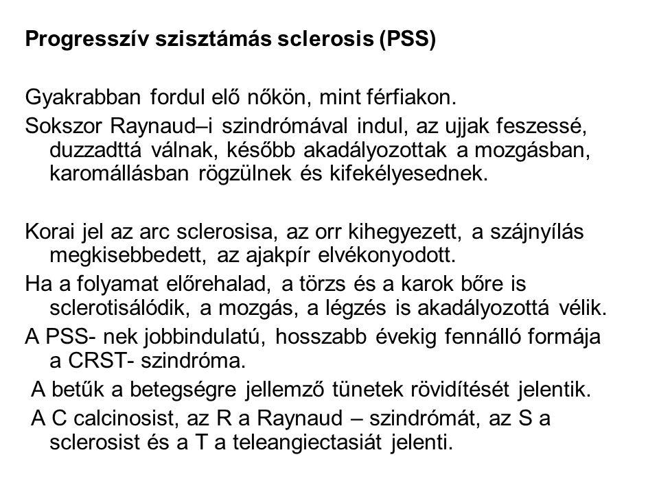 Progresszív szisztámás sclerosis (PSS)