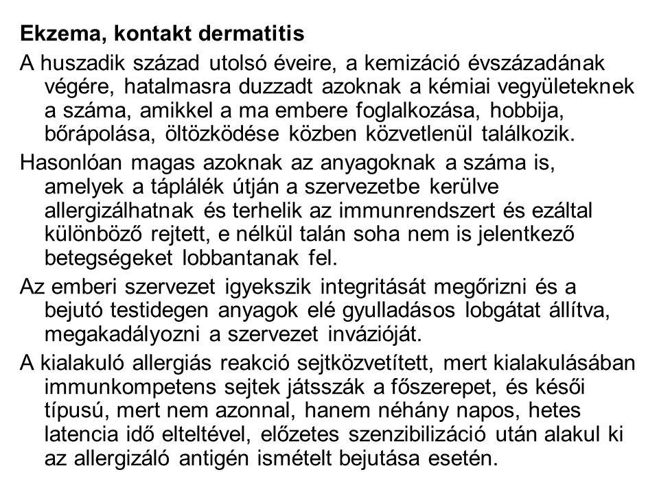 Ekzema, kontakt dermatitis