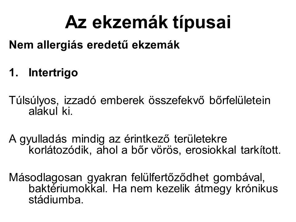 Az ekzemák típusai Nem allergiás eredetű ekzemák Intertrigo