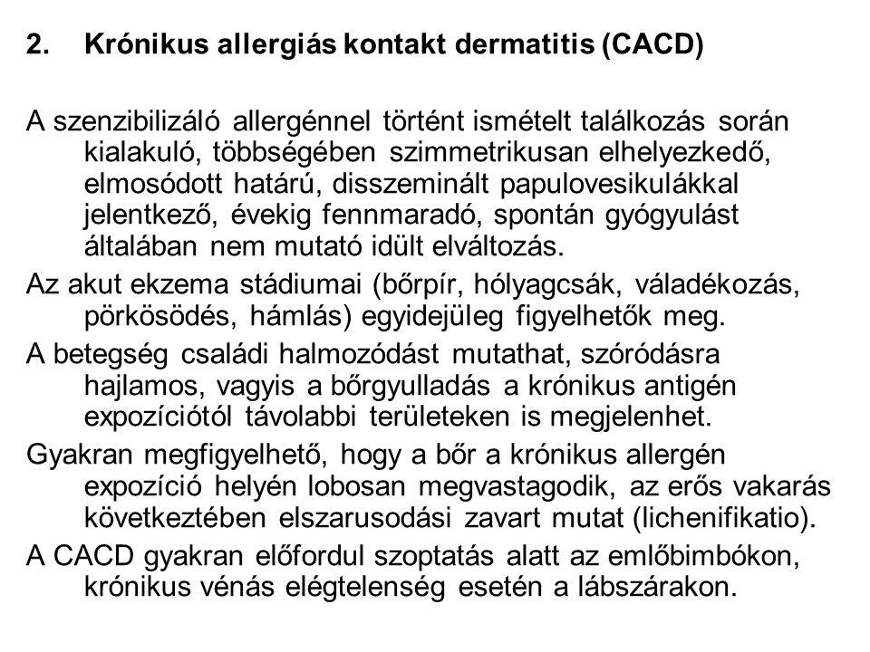 Krónikus allergiás kontakt dermatitis (CACD)