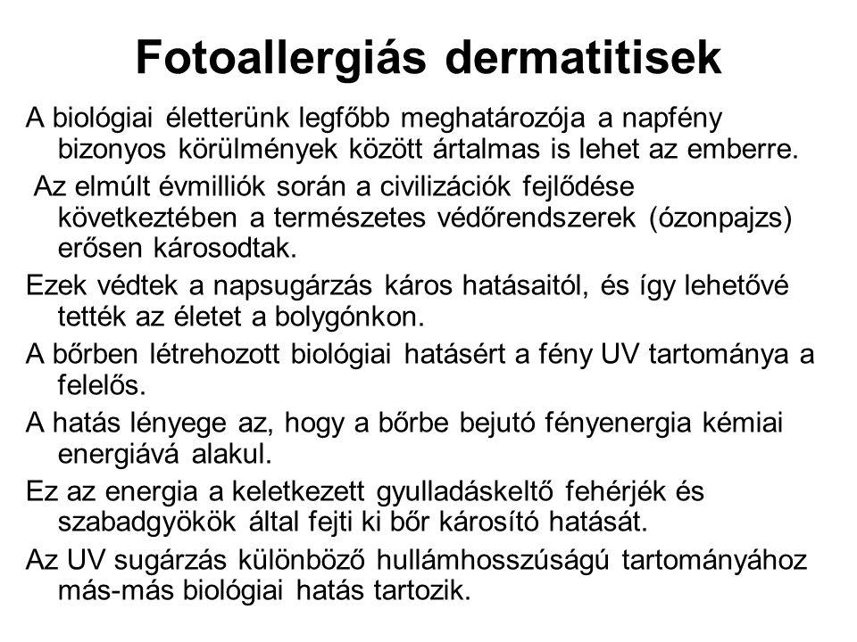 Fotoallergiás dermatitisek
