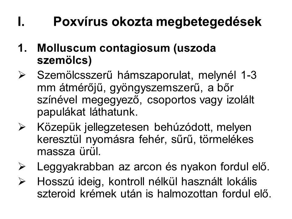 Poxvírus okozta megbetegedések