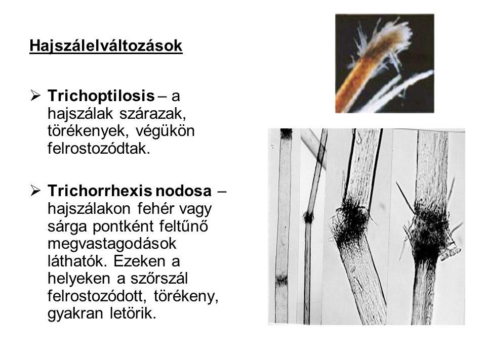 Hajszálelváltozások Trichoptilosis – a hajszálak szárazak, törékenyek, végükön felrostozódtak.
