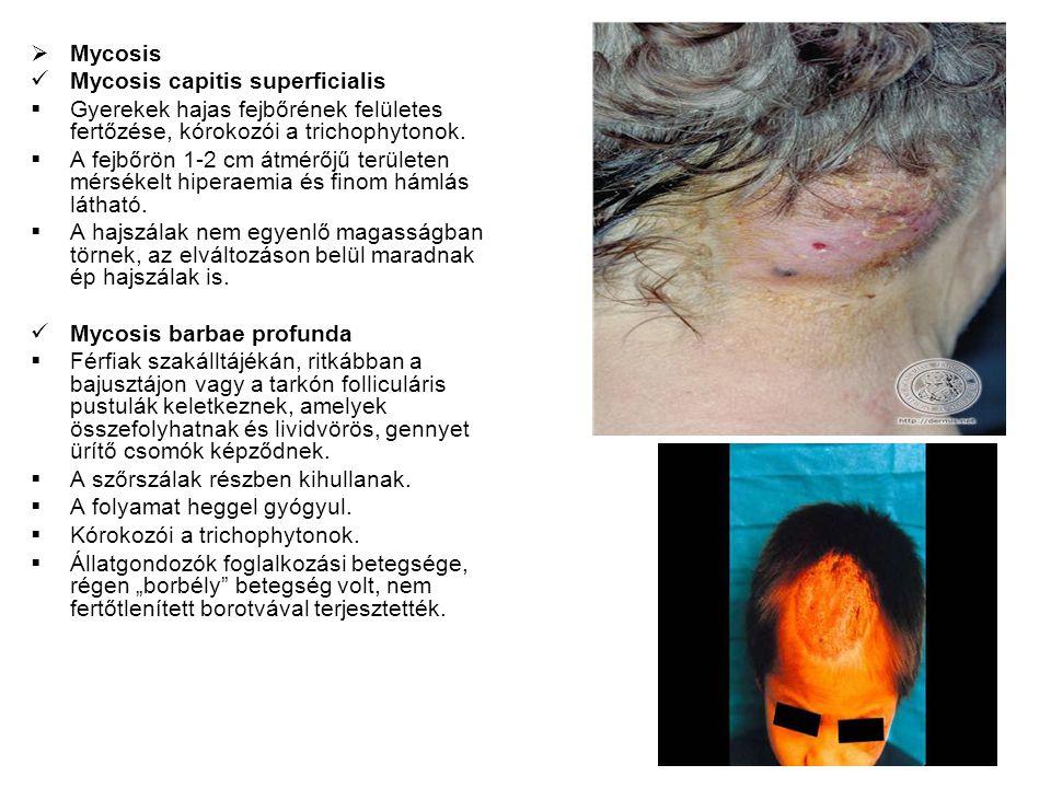 Mycosis Mycosis capitis superficialis. Gyerekek hajas fejbőrének felületes fertőzése, kórokozói a trichophytonok.