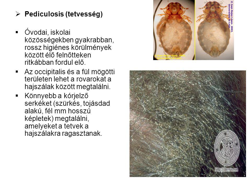 Pediculosis (tetvesség)