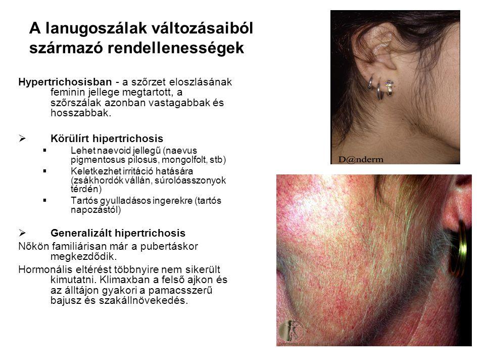 A lanugoszálak változásaiból származó rendellenességek