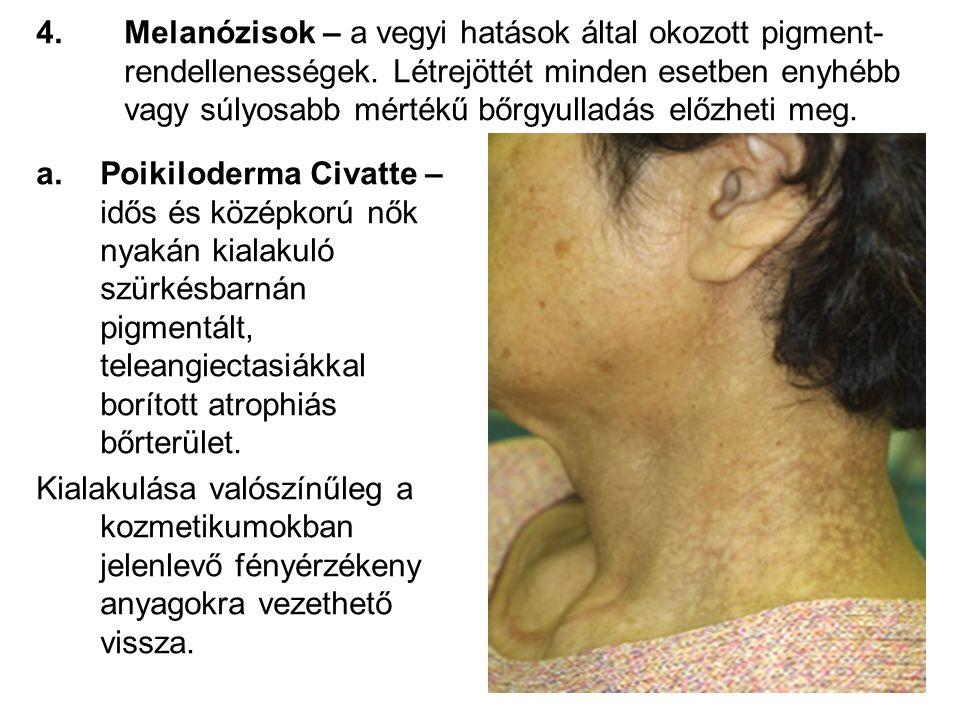 Melanózisok – a vegyi hatások által okozott pigment-rendellenességek