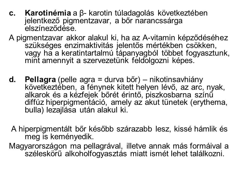 Karotinémia a β- karotin túladagolás következtében jelentkező pigmentzavar, a bőr narancssárga elszíneződése.