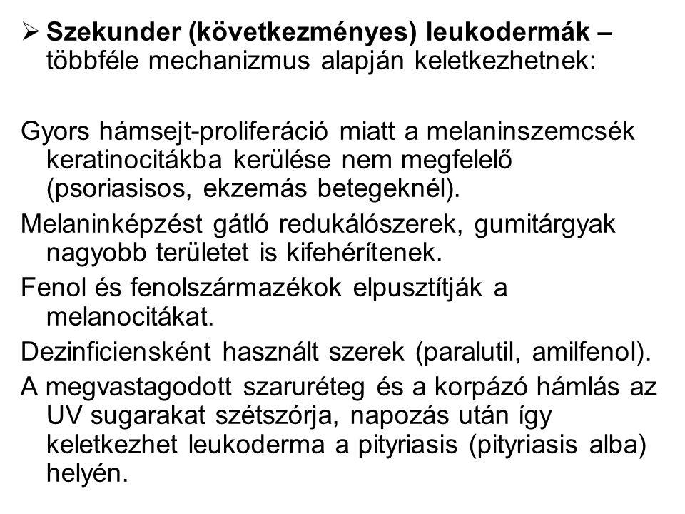 Szekunder (következményes) leukodermák – többféle mechanizmus alapján keletkezhetnek: