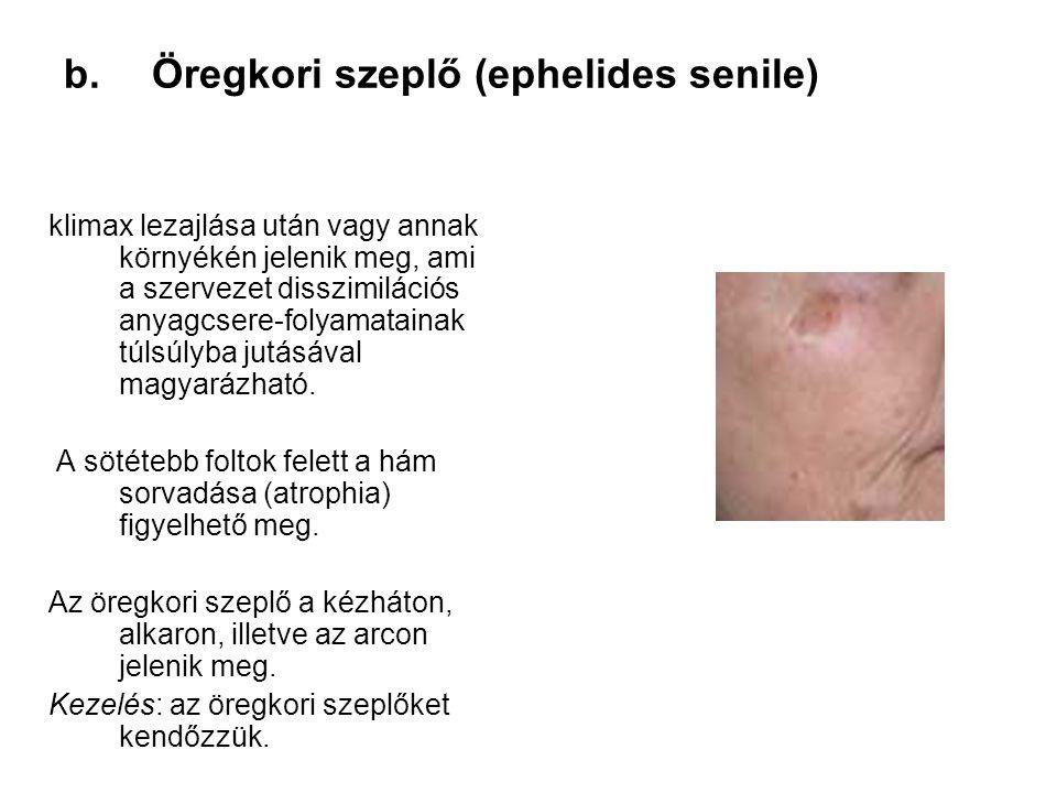Öregkori szeplő (ephelides senile)