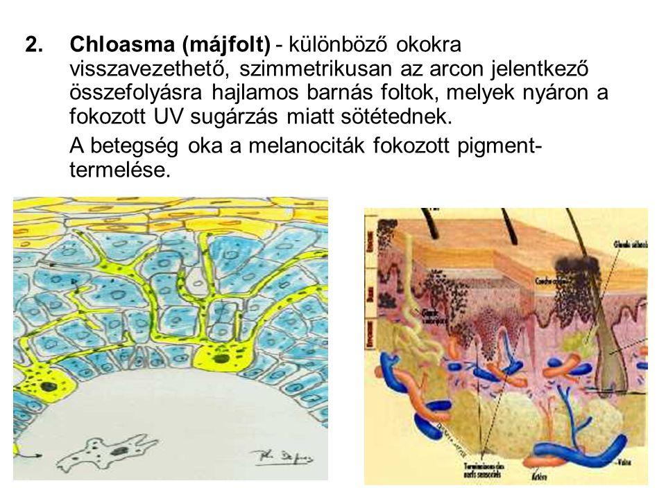 Chloasma (májfolt) - különböző okokra visszavezethető, szimmetrikusan az arcon jelentkező összefolyásra hajlamos barnás foltok, melyek nyáron a fokozott UV sugárzás miatt sötétednek.