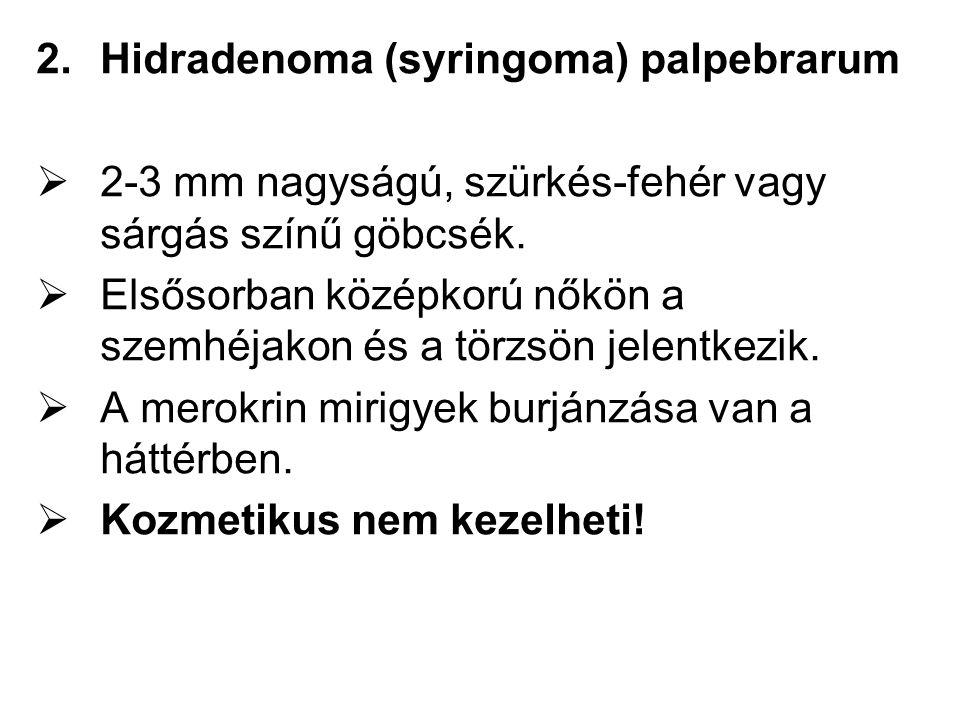 Hidradenoma (syringoma) palpebrarum