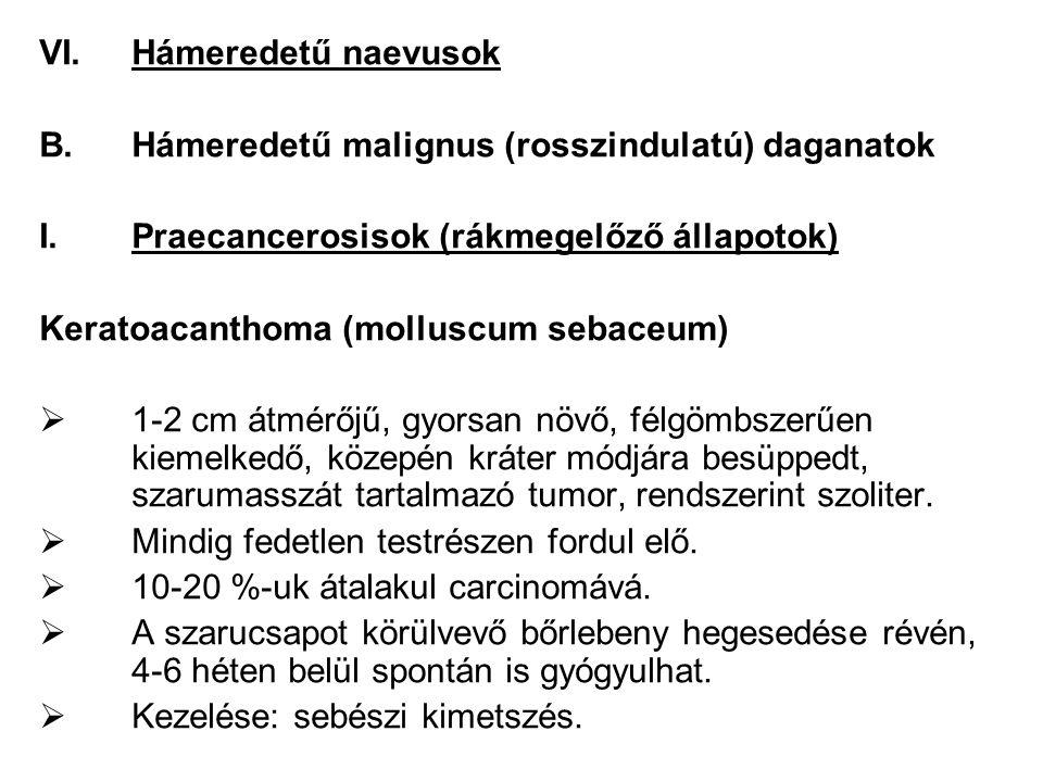 Hámeredetű naevusok Hámeredetű malignus (rosszindulatú) daganatok. Praecancerosisok (rákmegelőző állapotok)