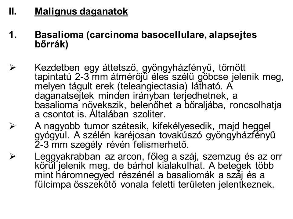 Malignus daganatok Basalioma (carcinoma basocellulare, alapsejtes bőrrák)