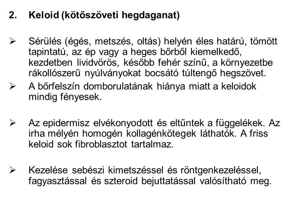 Keloid (kötőszöveti hegdaganat)