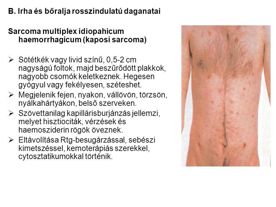 B. Irha és bőralja rosszindulatú daganatai